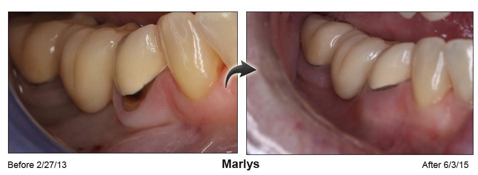 Marlys2