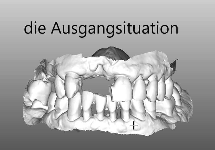 digitales Röntgenbild mit fehlenden Zähnen