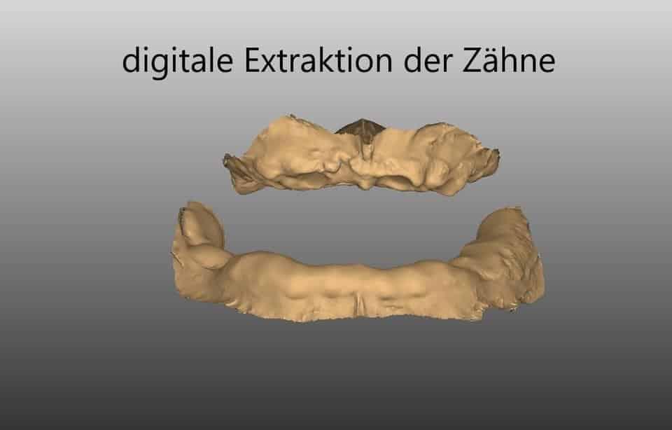 digitalisierte Aufnahme des Kiefers ohne Zähne