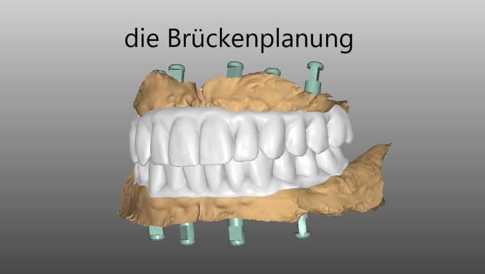 Dr. Schmidt plant Brücke als Zahnersatz