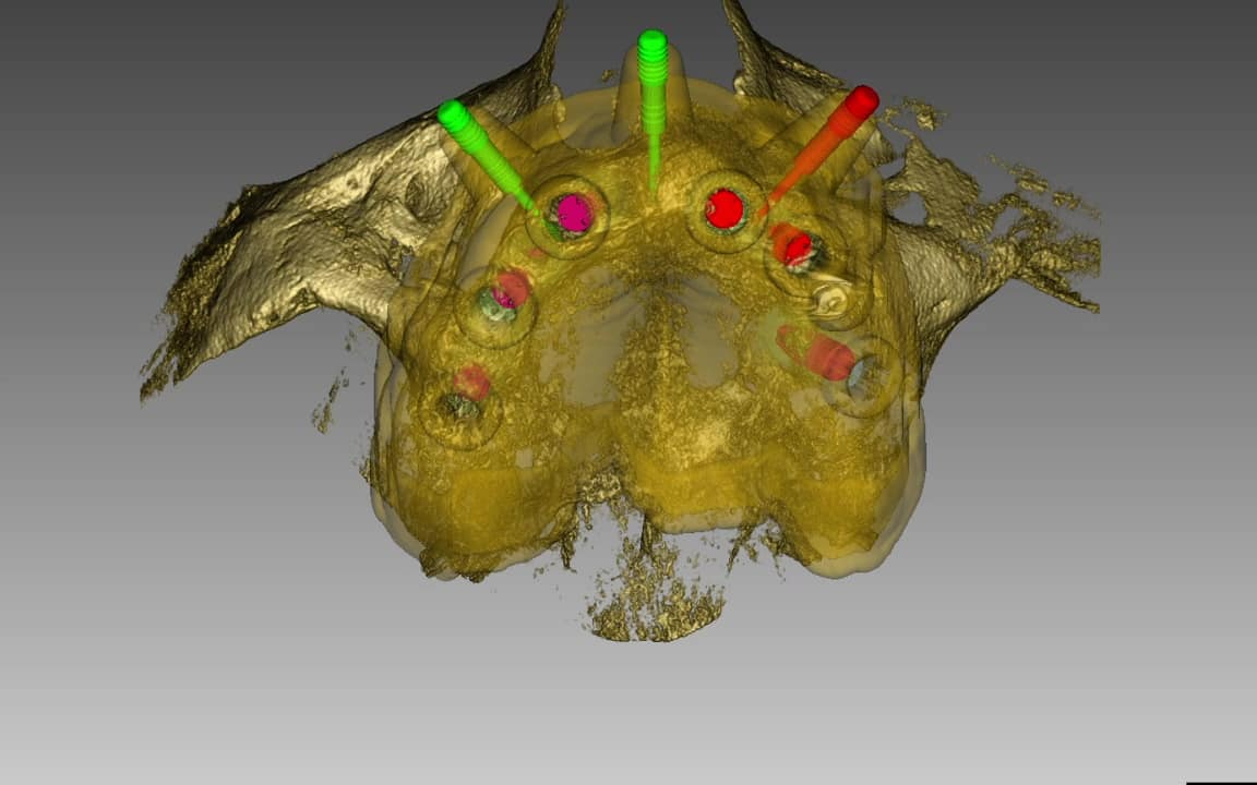Oberkiefer bekommt Implantate mit Bohrschablone