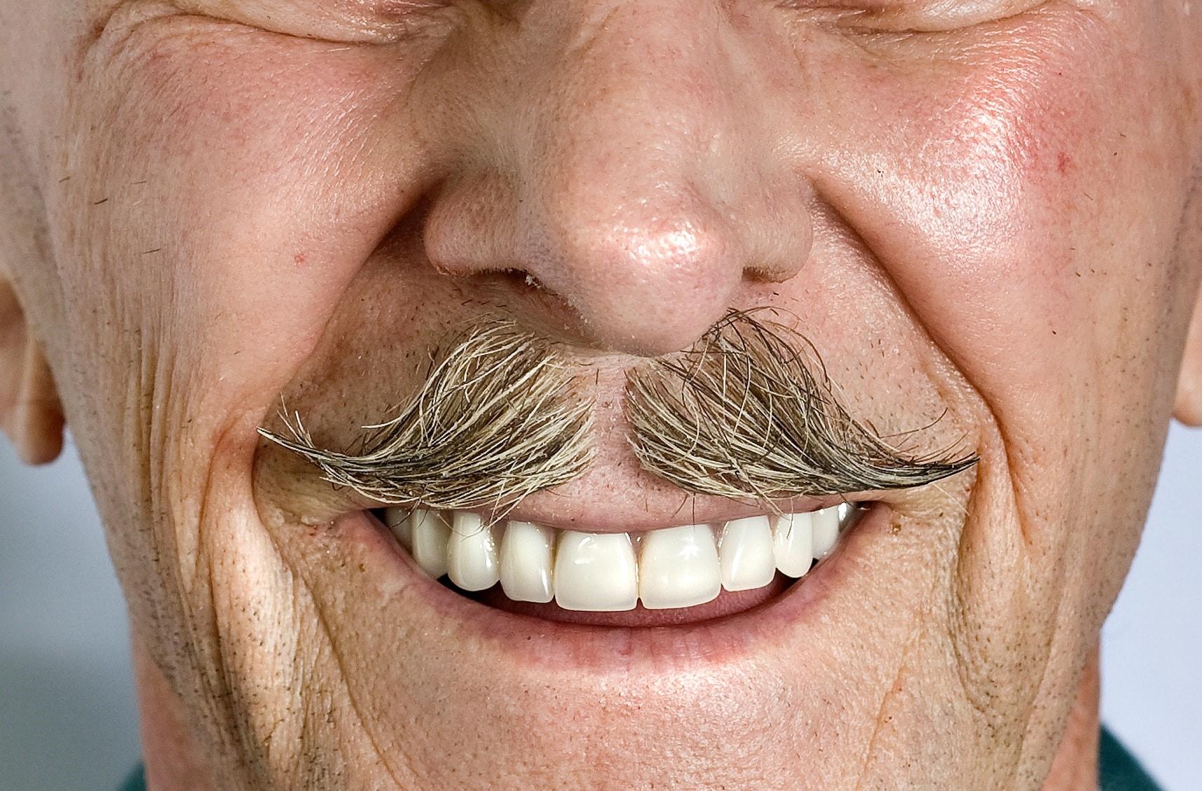 zahnersatz mit all on x in konstanz zahnarztpraxis dr. schmidt